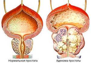 Лучевая терапия предстательной железы в москве