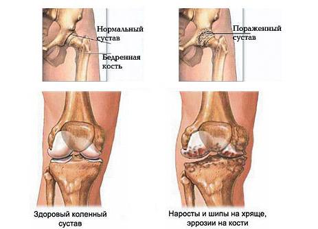 Остеопатия коленного сустава
